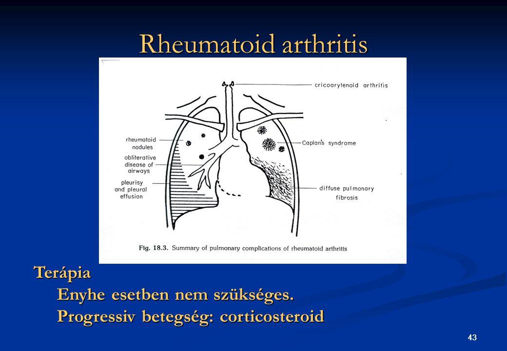 43 Rheumatoid arthritis 43 Terápia Enyhe esetben nem szükséges. Progressiv betegség: corticosteroid