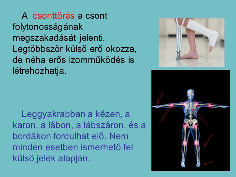 A csonttörés a csont folytonosságának megszakadását jelenti. Legtöbbször külső erő okozza, de néha erős izomműködés is létrehozhatja. Leggyakrabban a