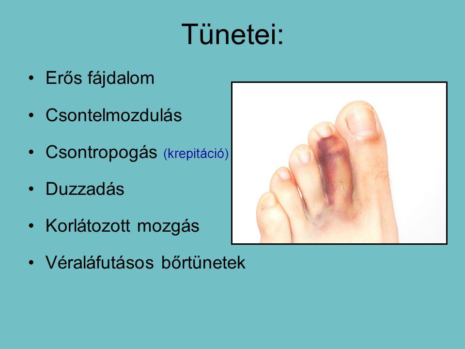 Tünetei: Erős fájdalom Csontelmozdulás Csontropogás (krepitáció) Duzzadás Korlátozott mozgás Véraláfutásos bőrtünetek
