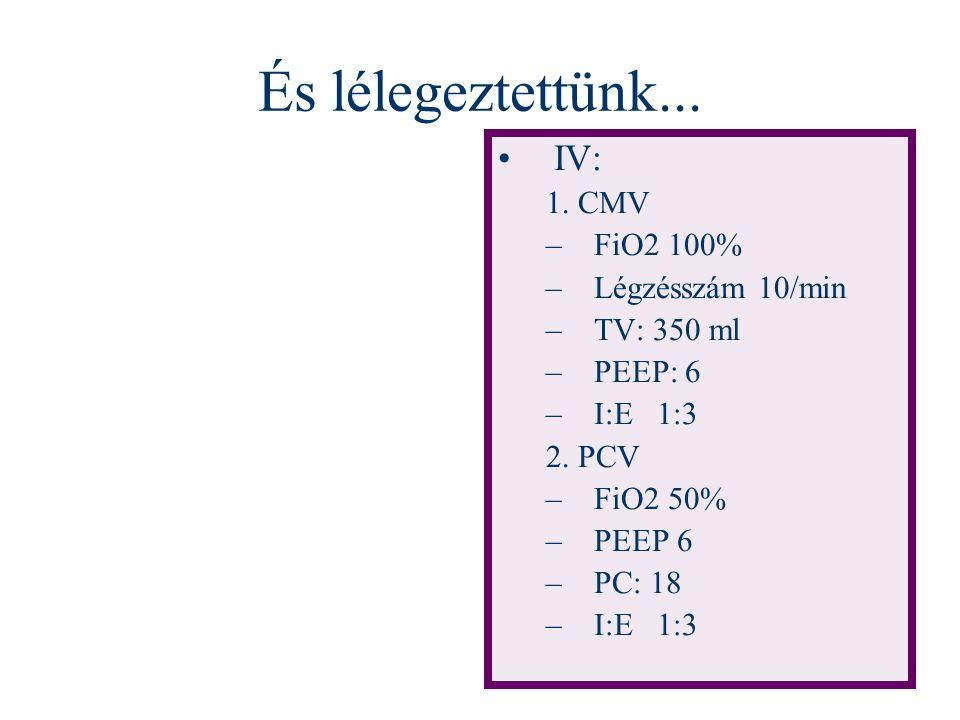 És lélegeztettünk... IV: 1. CMV –FiO2 100% –Légzésszám 10/min –TV: 350 ml –PEEP: 6 –I:E 1:3 2. PCV –FiO2 50% –PEEP 6 –PC: 18 –I:E 1:3