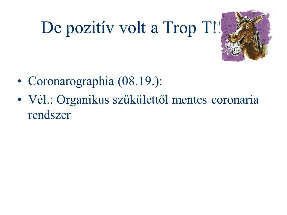 De pozitív volt a Trop T!! Coronarographia (08.19.): Vél.: Organikus szűkülettől mentes coronaria rendszer