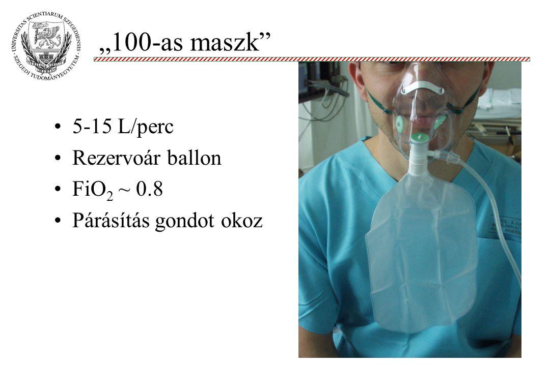 """""""100-as maszk"""" Molnár '99 5-15 L/perc Rezervoár ballon FiO 2 ~ 0.8 Párásítás gondot okoz"""