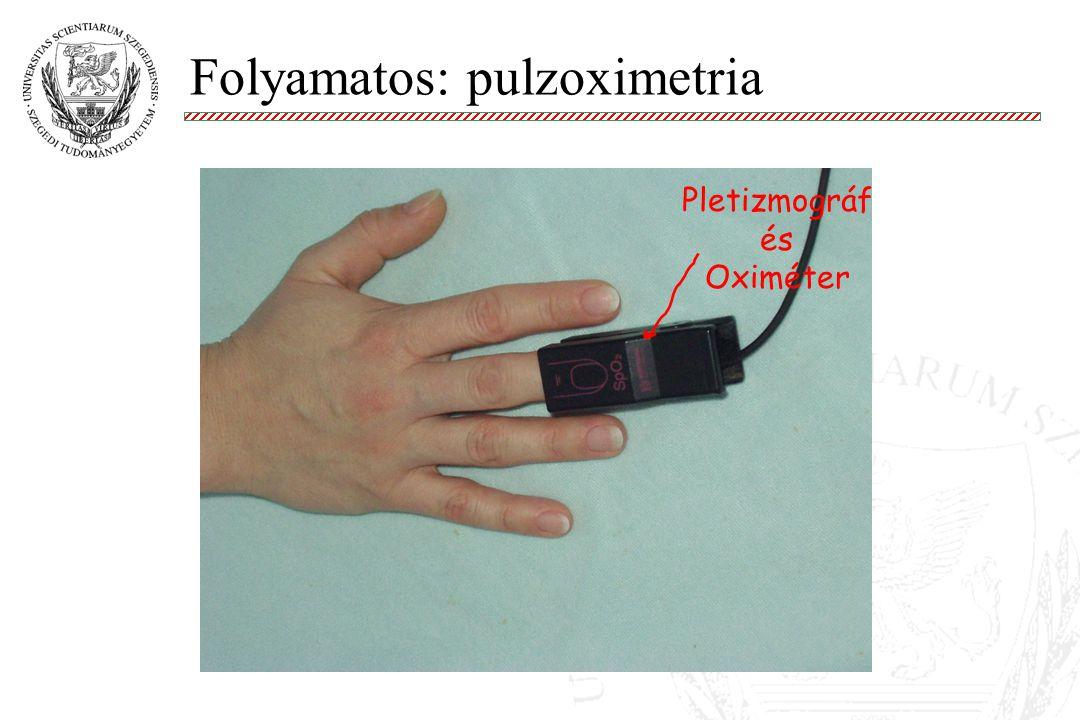 Folyamatos: pulzoximetria Molnár '99 Pletizmográf és Oximéter