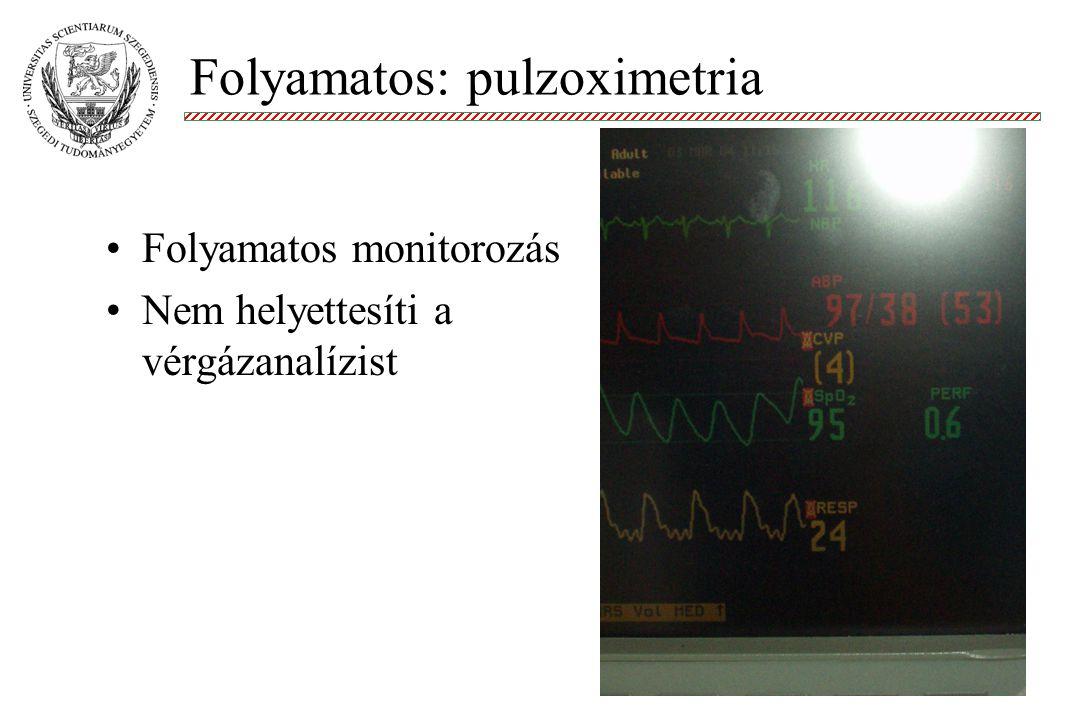 Molnár '99 Folyamatos monitorozás Nem helyettesíti a vérgázanalízist Folyamatos: pulzoximetria