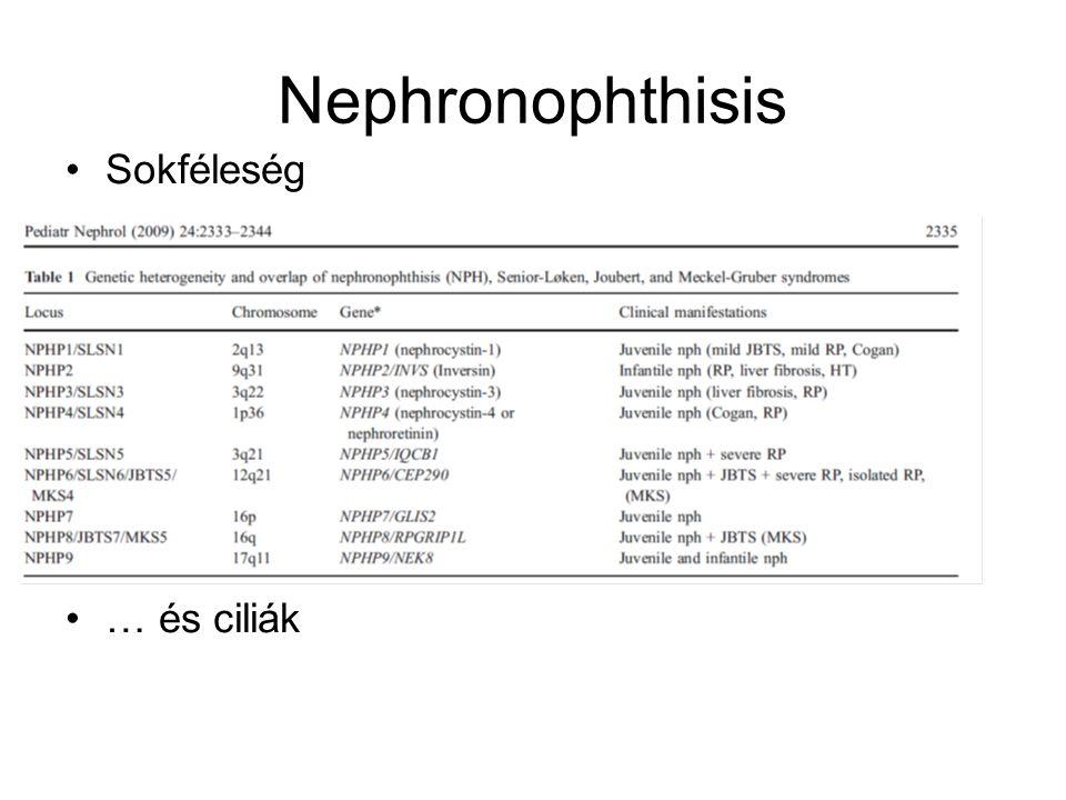 Nephronophthisis Sokféleség … és ciliák