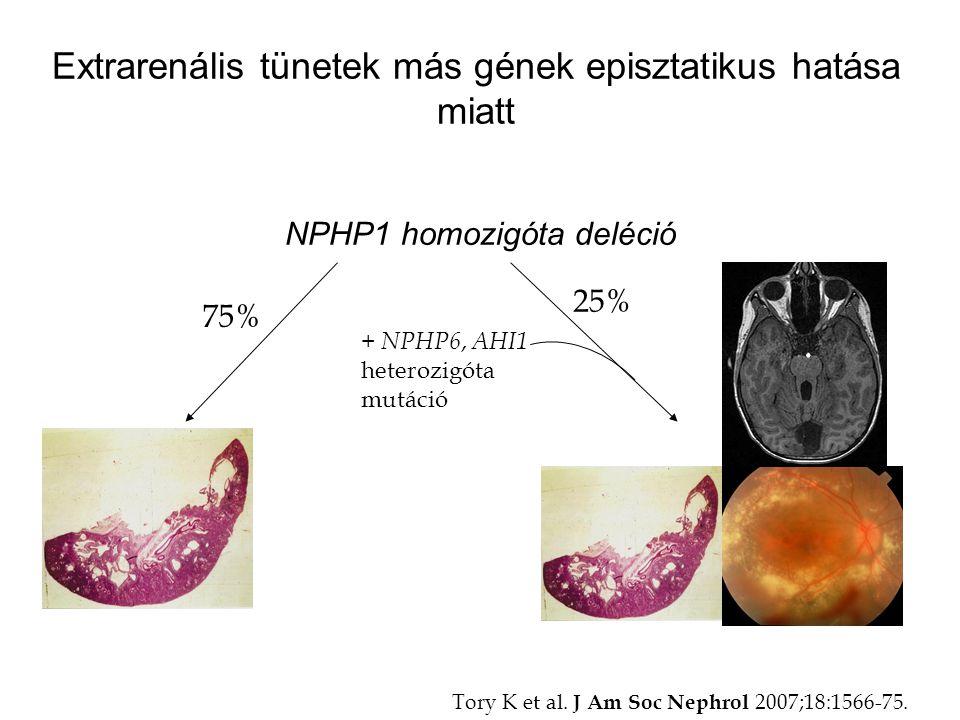 Extrarenális tünetek más gének episztatikus hatása miatt NPHP1 homozigóta deléció 75% 25% + NPHP6, AHI1 heterozigóta mutáció Tory K et al. J Am Soc Ne