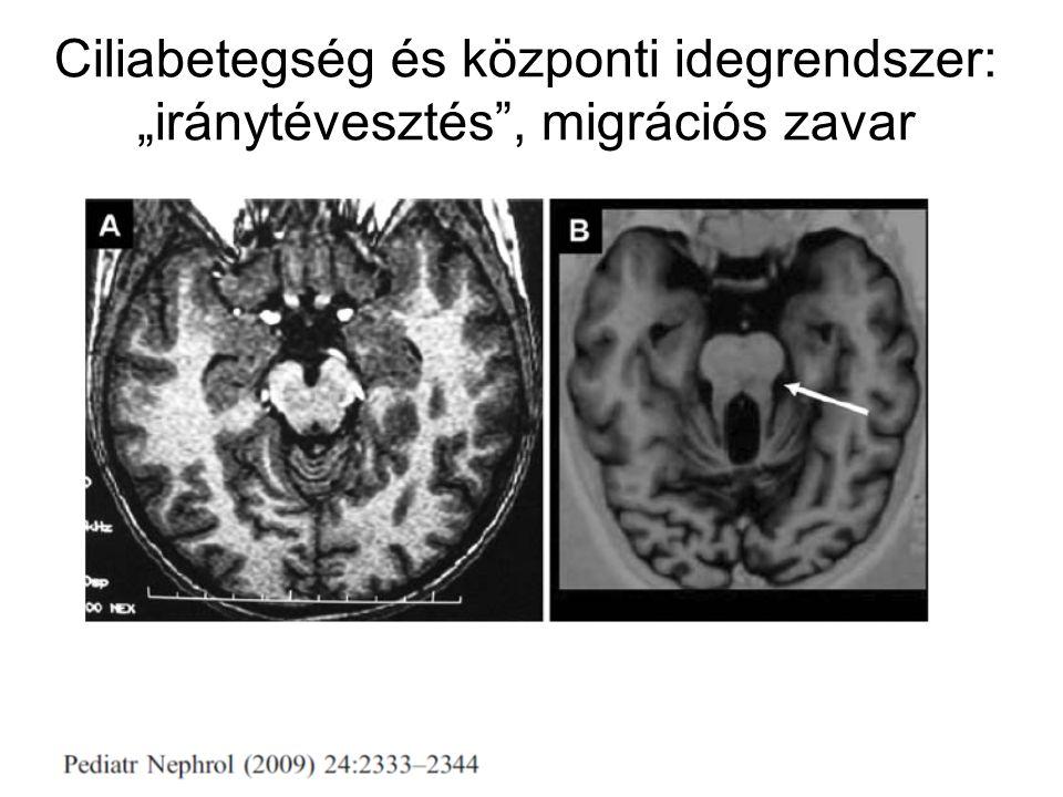 """Ciliabetegség és központi idegrendszer: """"iránytévesztés"""", migrációs zavar"""