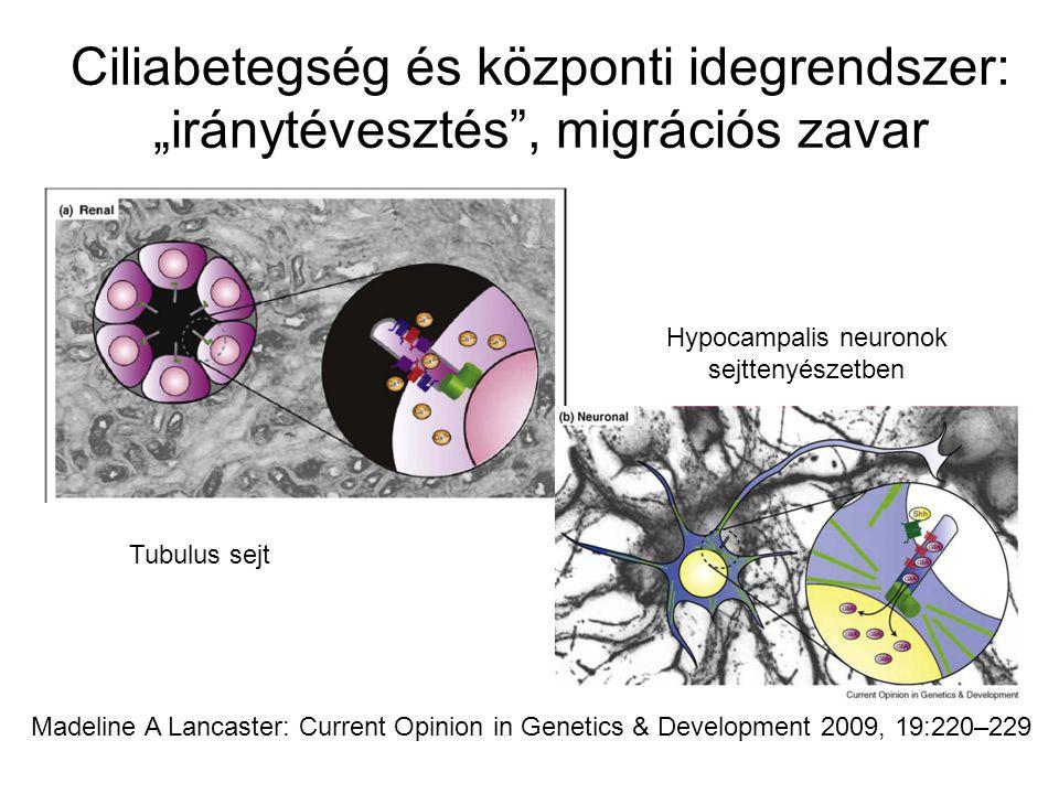 Madeline A Lancaster: Current Opinion in Genetics & Development 2009, 19:220–229 Tubulus sejt Hypocampalis neuronok sejttenyészetben Ciliabetegség és