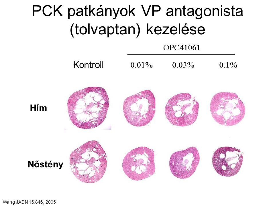 Wang JASN 16:846, 2005 PCK patkányok VP antagonista (tolvaptan) kezelése Hím Nőstény Kontroll