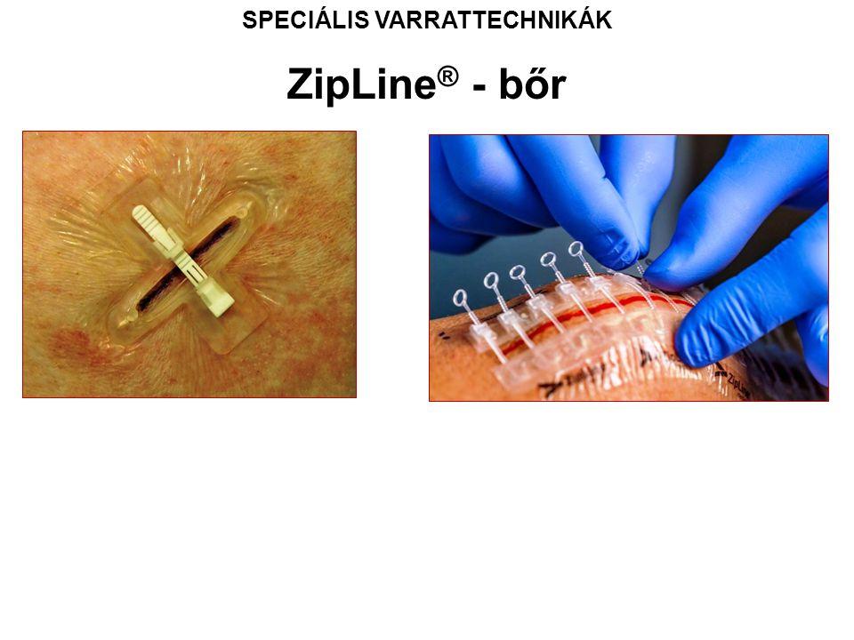 SPECIÁLIS VARRATTECHNIKÁK ZipLine ® - bőr