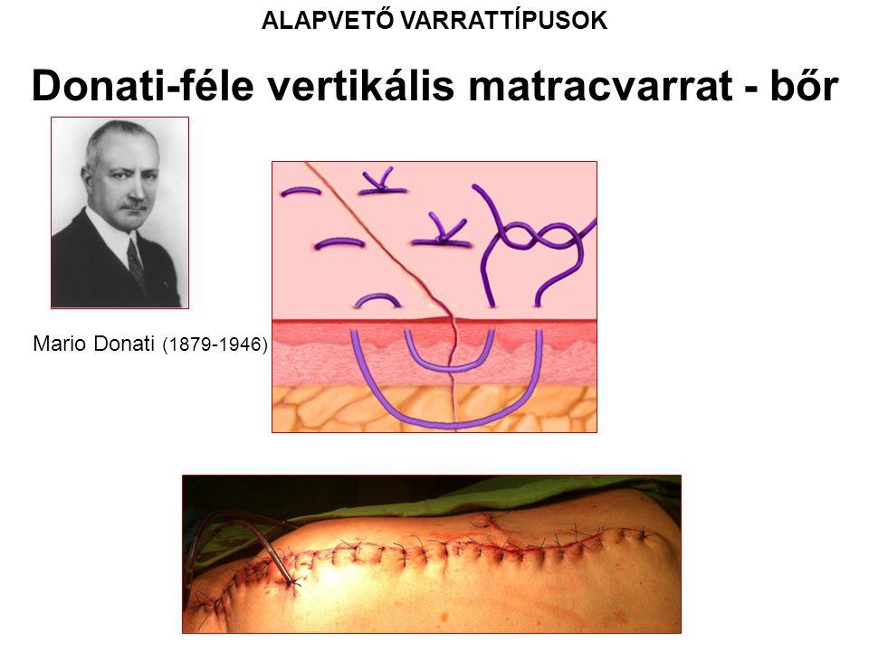 ALAPVETŐ VARRATTÍPUSOK Donati-féle vertikális matracvarrat - bőr Mario Donati (1879-1946)
