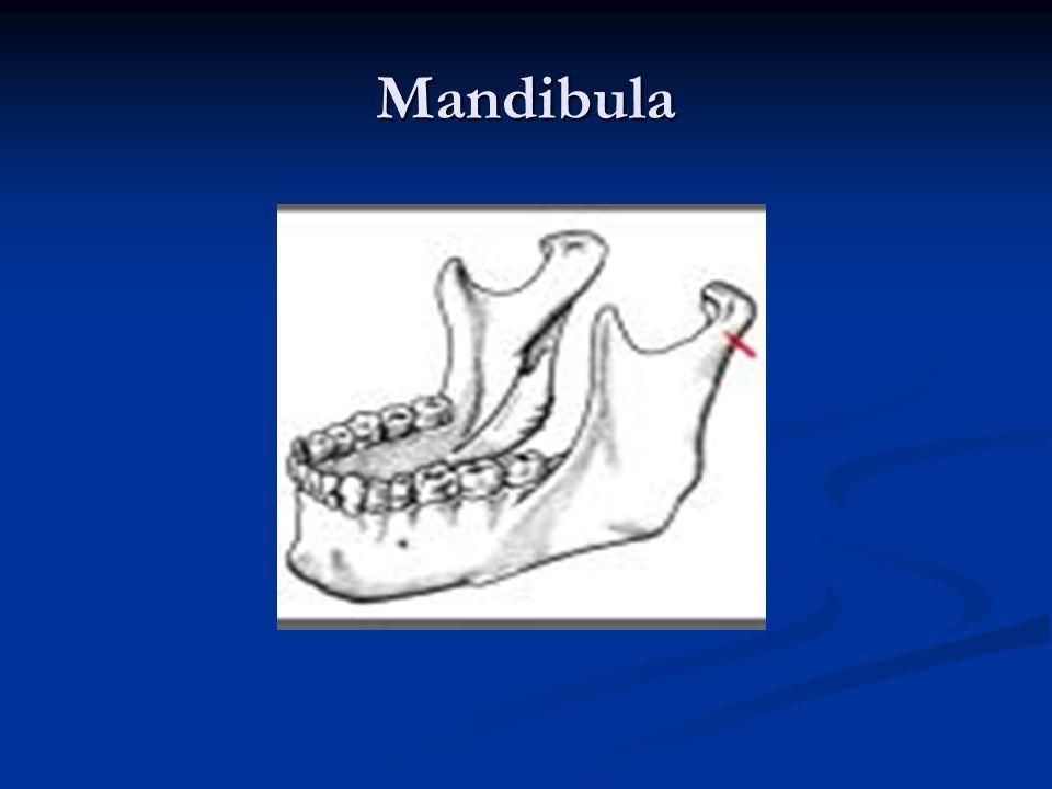 Maxilla fogakkal
