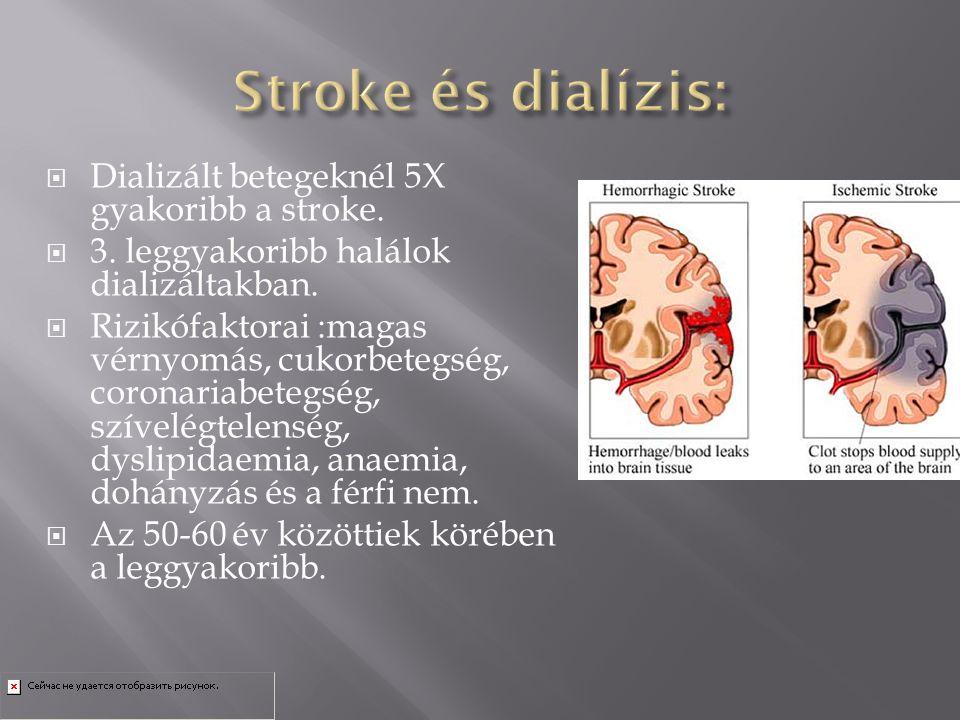  Dializált betegeknél 5X gyakoribb a stroke.  3. leggyakoribb halálok dializáltakban.  Rizikófaktorai :magas vérnyomás, cukorbetegség, coronariabet