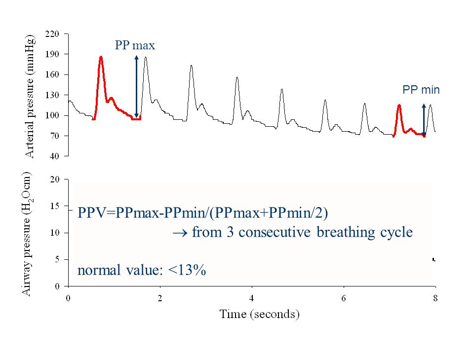 PP max PP min PPV=PPmax-PPmin/(PPmax+PPmin/2)  from 3 consecutive breathing cycle normal value: <13%