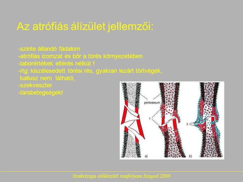 Az atrófiás álízület jellemzői: -szinte állandó fádalom -atrófiás izomzat és bőr a törés környezetében -laborértékek eltérés nélkül .