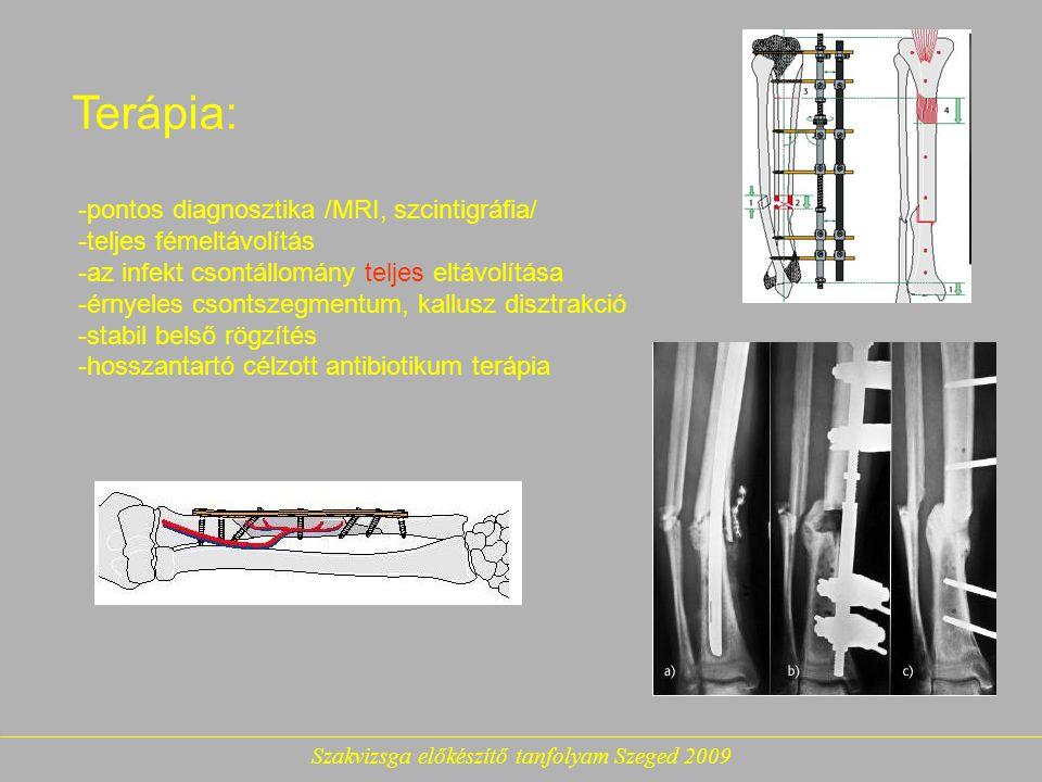 Szakvizsga előkészítő tanfolyam Szeged 2009 Terápia: -pontos diagnosztika /MRI, szcintigráfia/ -teljes fémeltávolítás -az infekt csontállomány teljes eltávolítása -érnyeles csontszegmentum, kallusz disztrakció -stabil belső rögzítés -hosszantartó célzott antibiotikum terápia