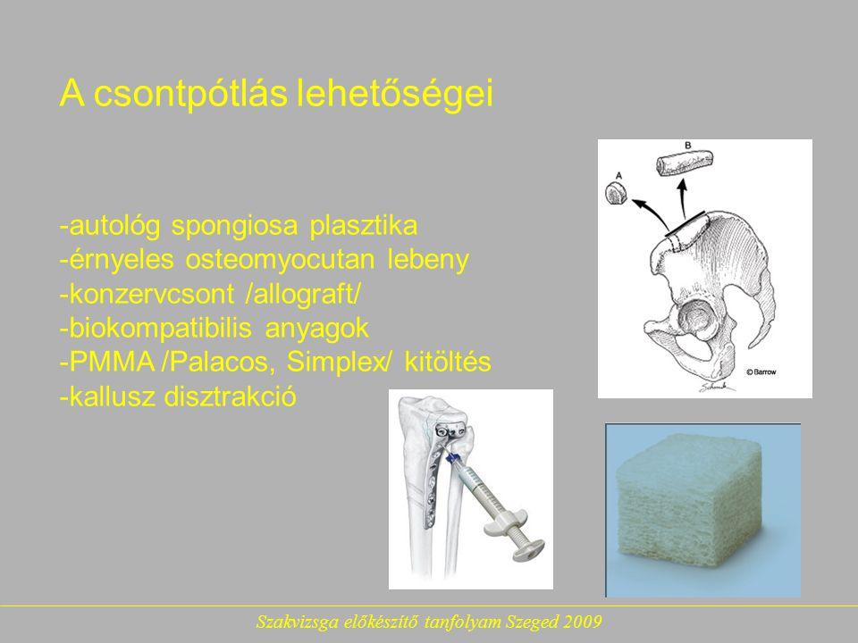 Szakvizsga előkészítő tanfolyam Szeged 2009 A csontpótlás lehetőségei -autológ spongiosa plasztika -érnyeles osteomyocutan lebeny -konzervcsont /allograft/ -biokompatibilis anyagok -PMMA /Palacos, Simplex/ kitöltés -kallusz disztrakció
