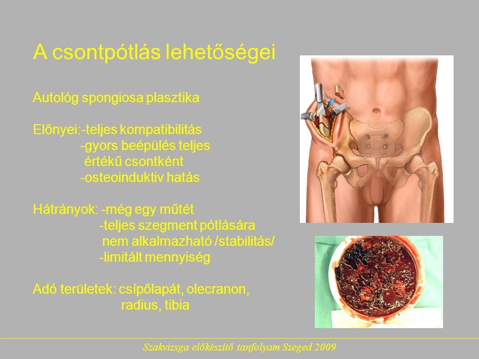 Szakvizsga előkészítő tanfolyam Szeged 2009 A csontpótlás lehetőségei Autológ spongiosa plasztika Előnyei:-teljes kompatibilitás -gyors beépülés teljes értékű csontként -osteoinduktiv hatás Hátrányok: -még egy műtét -teljes szegment pótlására nem alkalmazható /stabilitás/ -limitált mennyiség Adó területek: csípőlapát, olecranon, radius, tibia