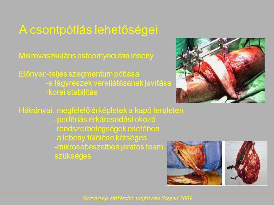 Szakvizsga előkészítő tanfolyam Szeged 2009 A csontpótlás lehetőségei Mikrovaszkuláris osteomyocutan lebeny Előnyei:-teljes szegmentum pótlása -a lágyrészek vérellátásának javítása -korai stabilitás Hátrányai:-megfelelő érképletek a kapó területen -perfériás érkárosodást okozó rendszerbetegségek esetében a lebeny túlélése kétséges -mikrosebészetben járatos team szükséges
