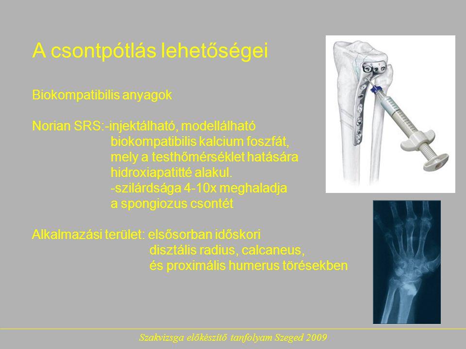 Szakvizsga előkészítő tanfolyam Szeged 2009 A csontpótlás lehetőségei Biokompatibilis anyagok Norian SRS:-injektálható, modellálható biokompatibilis kalcium foszfát, mely a testhőmérséklet hatására hidroxiapatitté alakul.