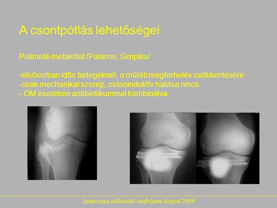 Szakvizsga előkészítő tanfolyam Szeged 2009 A csontpótlás lehetőségei Polimetil-metakrilat /Palacos, Simplex/ -elsősorban idős betegeknél, a műtéti megterhelés csökkentésére -csak mechanikai szerep, osteoinduktív hatása nincs - OM esetében antibiotikummal kombinálva
