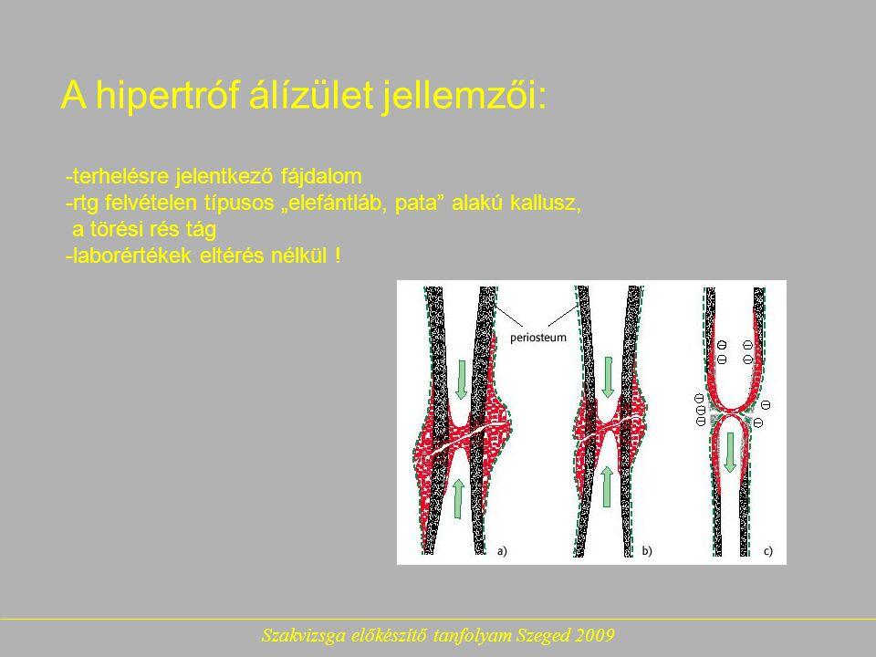 """A hipertróf álízület jellemzői: -terhelésre jelentkező fájdalom -rtg felvételen típusos """"elefántláb, pata alakú kallusz, a törési rés tág -laborértékek eltérés nélkül !"""
