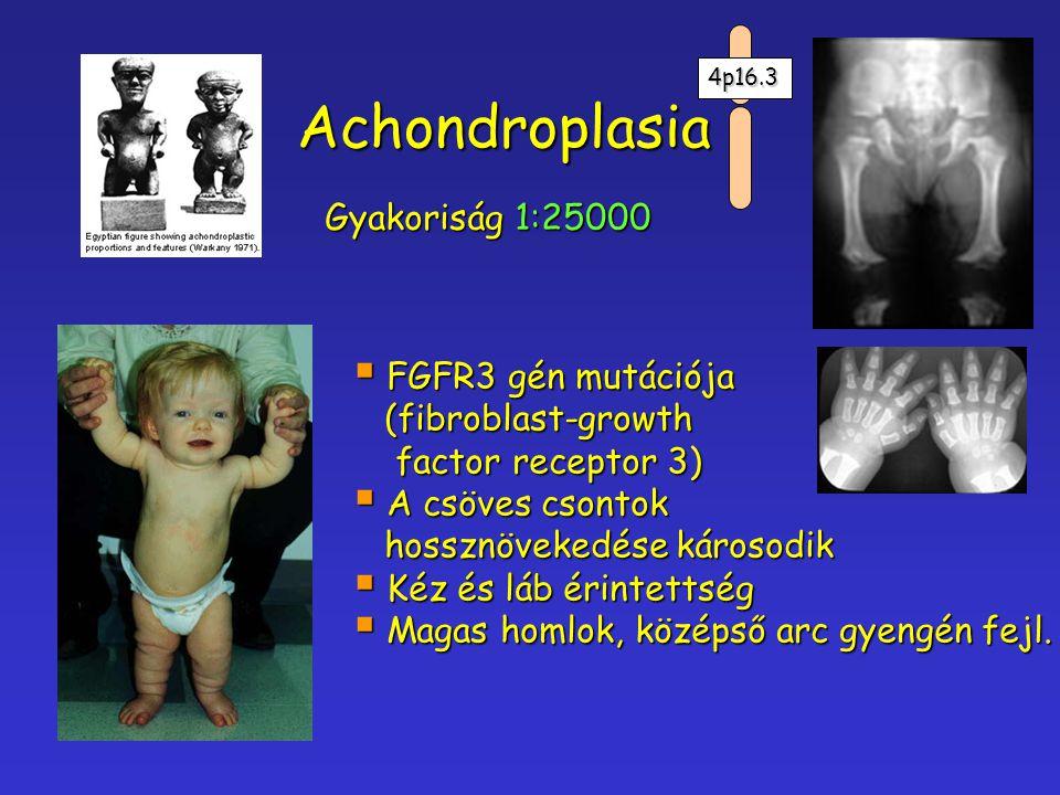 Achondroplasia Gyakoriság 1:25000  FGFR3 gén mutációja (fibroblast-growth (fibroblast-growth factor receptor 3) factor receptor 3)  A csöves csontok
