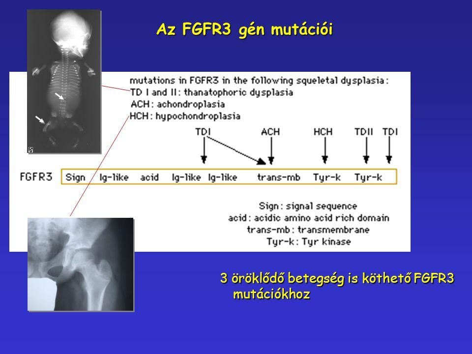 3 öröklődő betegség is köthető FGFR3 mutációkhoz Az FGFR3 gén mutációi