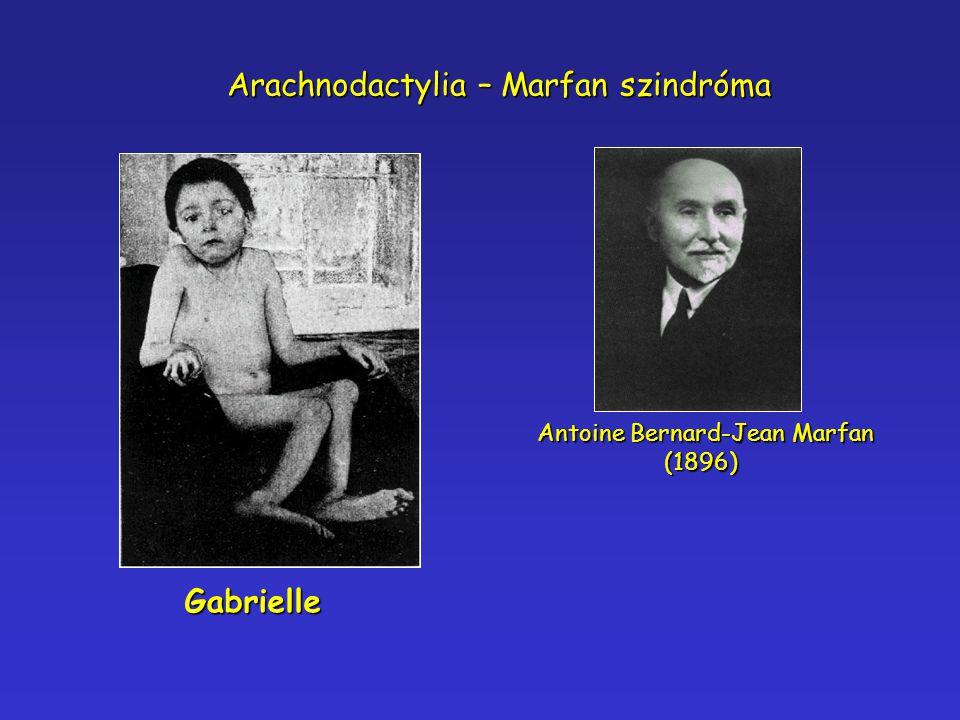 Gabrielle Antoine Bernard-Jean Marfan (1896) Arachnodactylia – Marfan szindróma