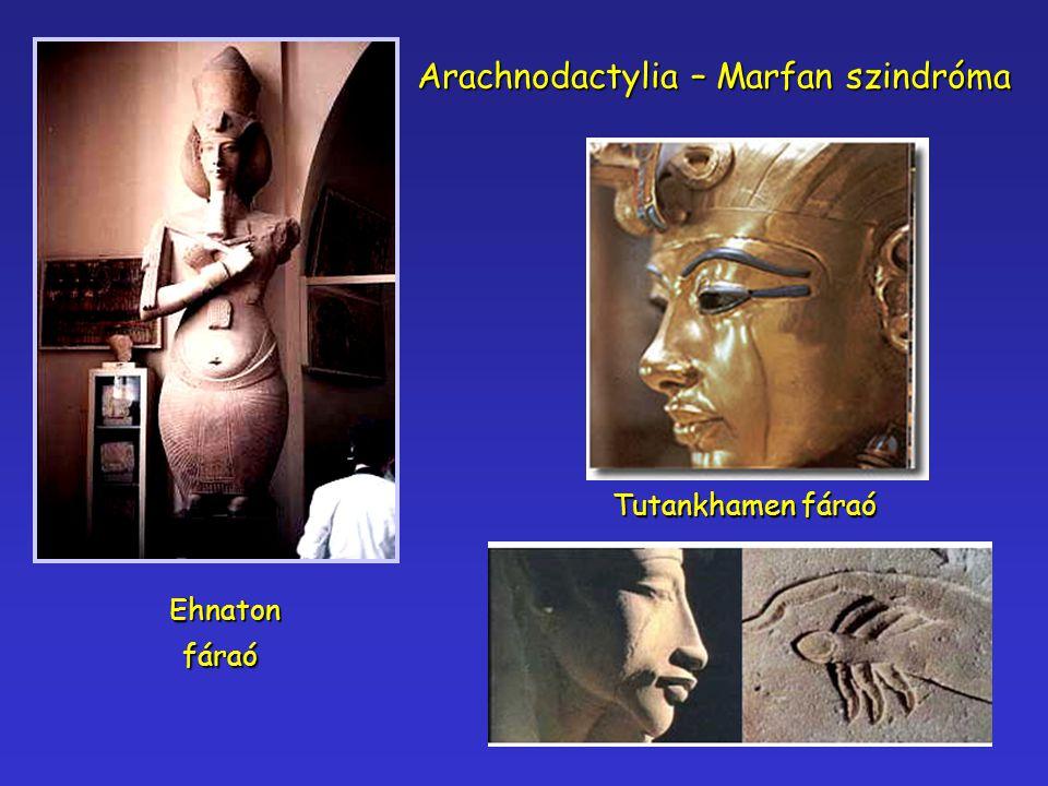 Ehnatonfáraó Tutankhamen fáraó Arachnodactylia – Marfan szindróma