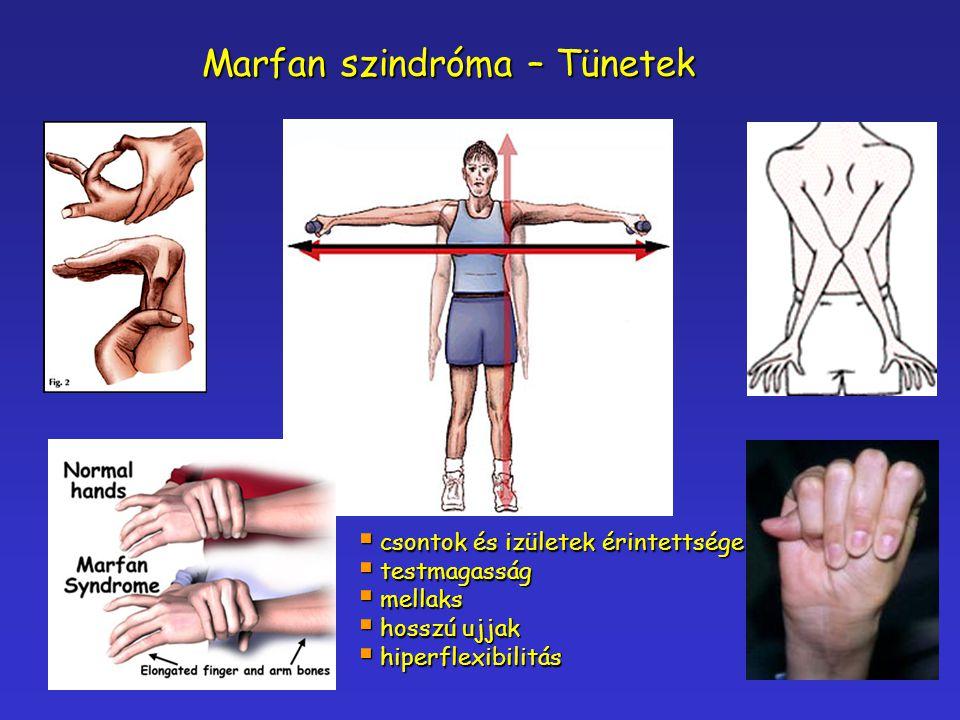Marfan szindróma – Tünetek  csontok és izületek érintettsége  testmagasság  mellaks  hosszú ujjak  hiperflexibilitás