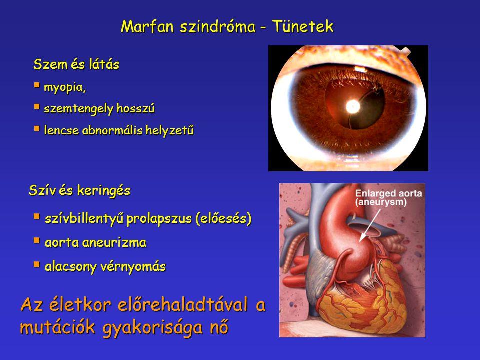 Az életkor előrehaladtával a mutációk gyakorisága nő Szem és látás  myopia,  szemtengely hosszú  lencse abnormális helyzetű  szívbillentyű prolaps