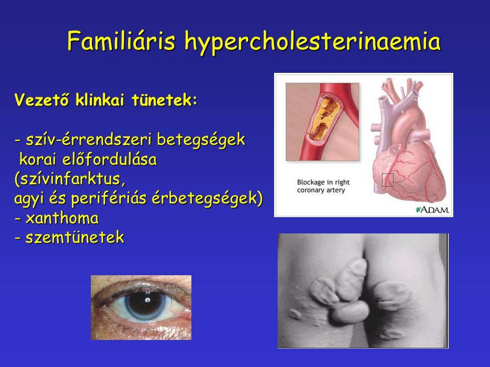 Familiáris hypercholesterinaemia Vezető klinkai tünetek: - szív-érrendszeri betegségek korai előfordulása korai előfordulása(szívinfarktus, agyi és pe