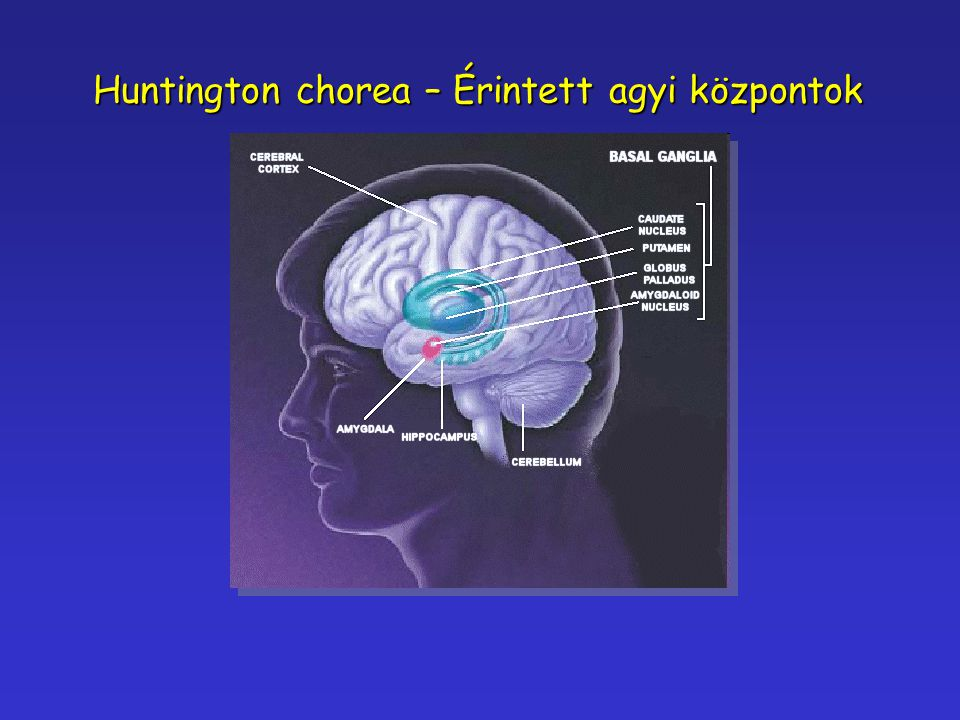 Huntington chorea – Érintett agyi központok