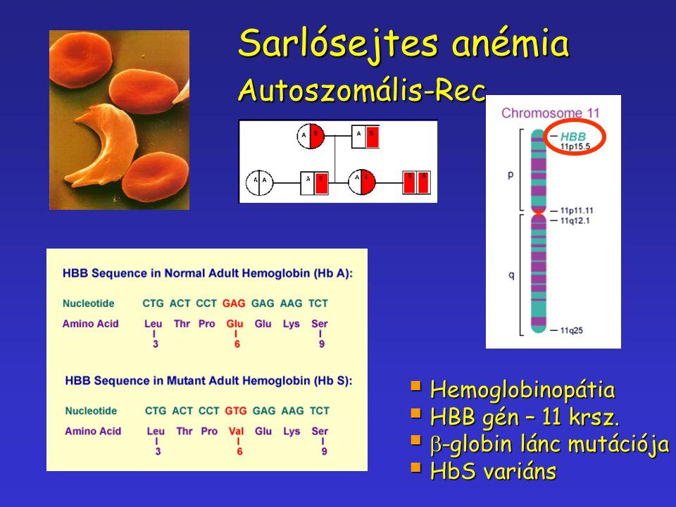 Sarlósejtes anémia Autoszomális-Rec..  Hemoglobinopátia  HBB gén – 11 krsz.   -globin lánc mutációja  HbS variáns