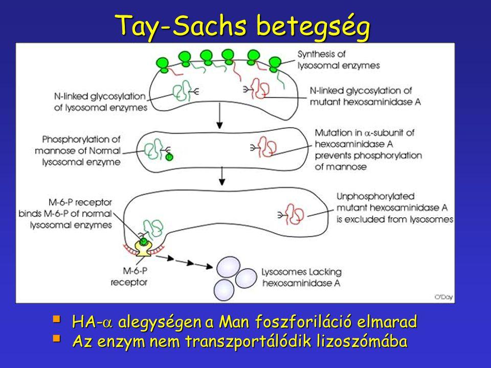 Tay-Sachs betegség  HA-  alegységen a Man foszforiláció elmarad  Az enzym nem transzportálódik lizoszómába