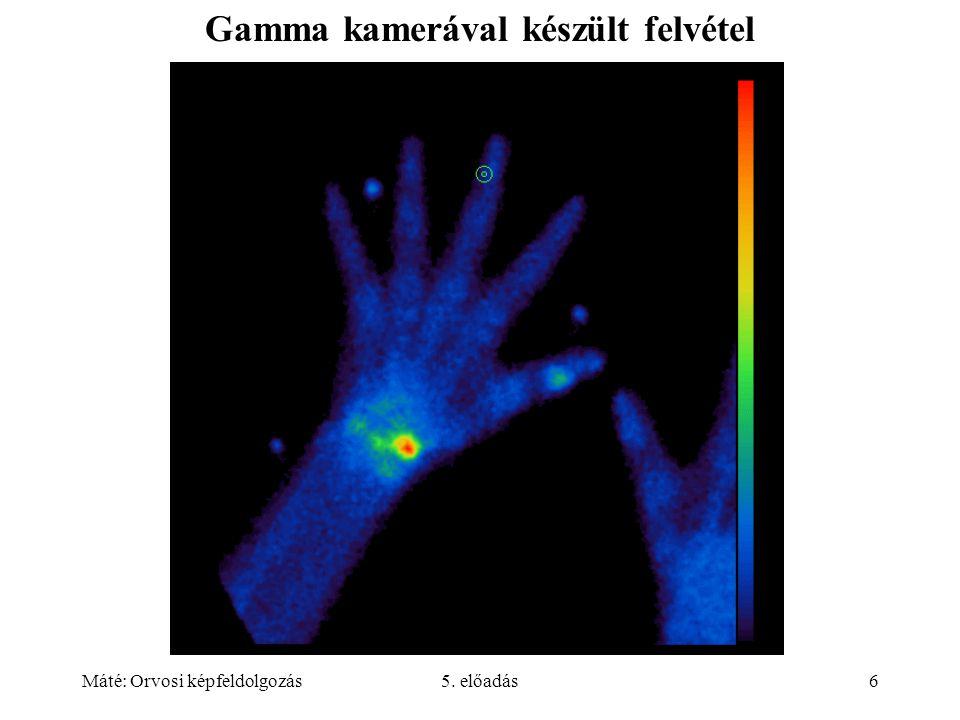 Máté: Orvosi képfeldolgozás5. előadás6 Gamma kamerával készült felvétel