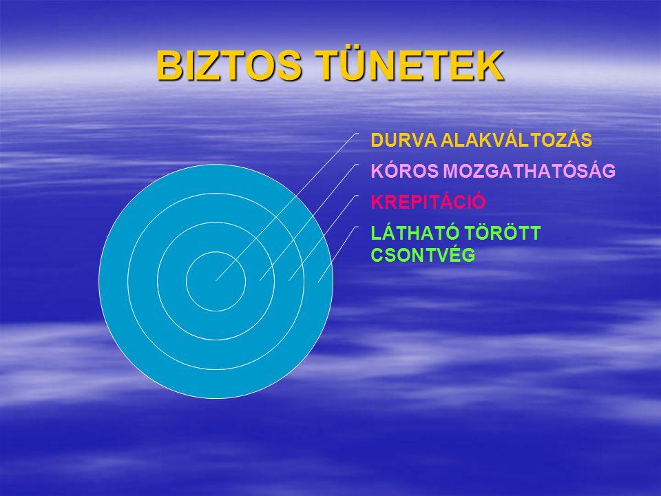 BIZTOS TÜNETEK DURVA ALAKVÁLTOZÁS KÓROS MOZGATHATÓSÁG KREPITÁCIÓ LÁTHATÓ TÖRÖTT CSONTVÉG