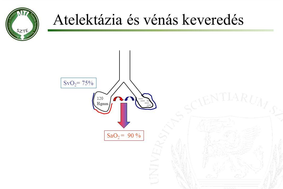 Atelektázia és vénás keveredés Molnár '99 SvO 2 = 75% SaO 2 = 90 % 120 Hgmm