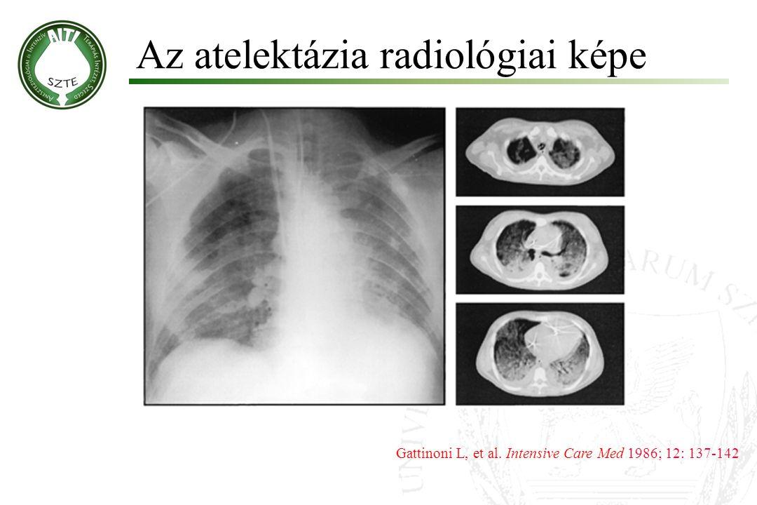 Az atelektázia radiológiai képe Gattinoni L, et al. Intensive Care Med 1986; 12: 137-142