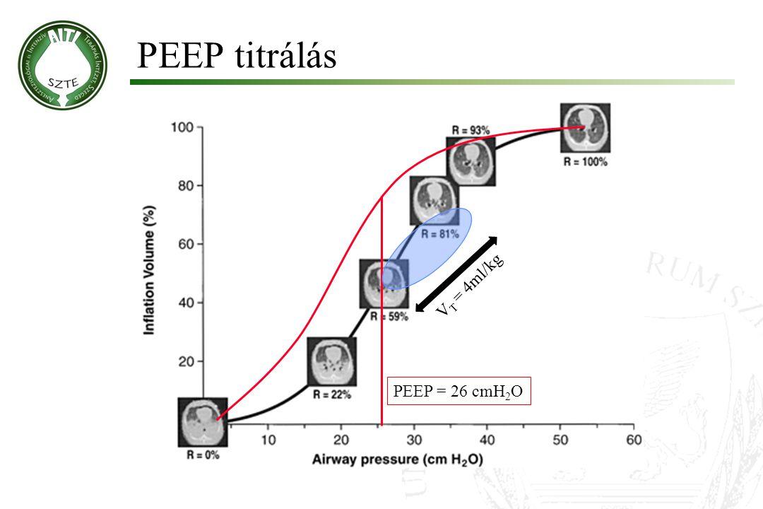 PEEP titrálás V T = 4ml/kg PEEP = 26 cmH 2 O