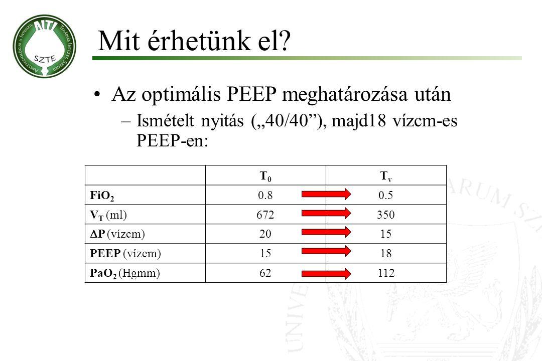 """Az optimális PEEP meghatározása után –Ismételt nyitás (""""40/40 ), majd18 vízcm-es PEEP-en: Mit érhetünk el."""