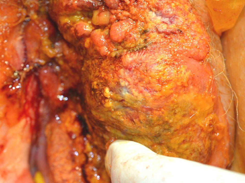 Teljes túlélést a lymphadenectomia javítja Vulvectomy+lymphadenectomia Vulvectomia