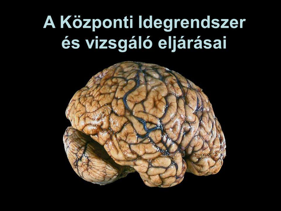 Az agytörzs legkisebb része Fontos összeköttetések motoros rendszer komponensei kisagy Bazális ganglionok (BG) agyféltekék pl.: substantia nigra (input BG-khoz) dopaminerg neuronok (Parkinson) Középagy (midbrain)