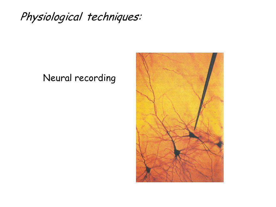 Az agyi működést feltérképező módszerek