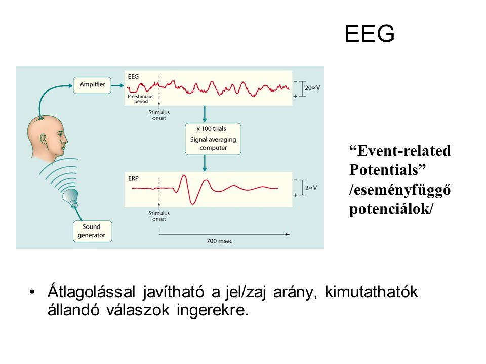 EEG Alkalmas epilepsziás gócok felderítésére Normal Activity Seizure Activity