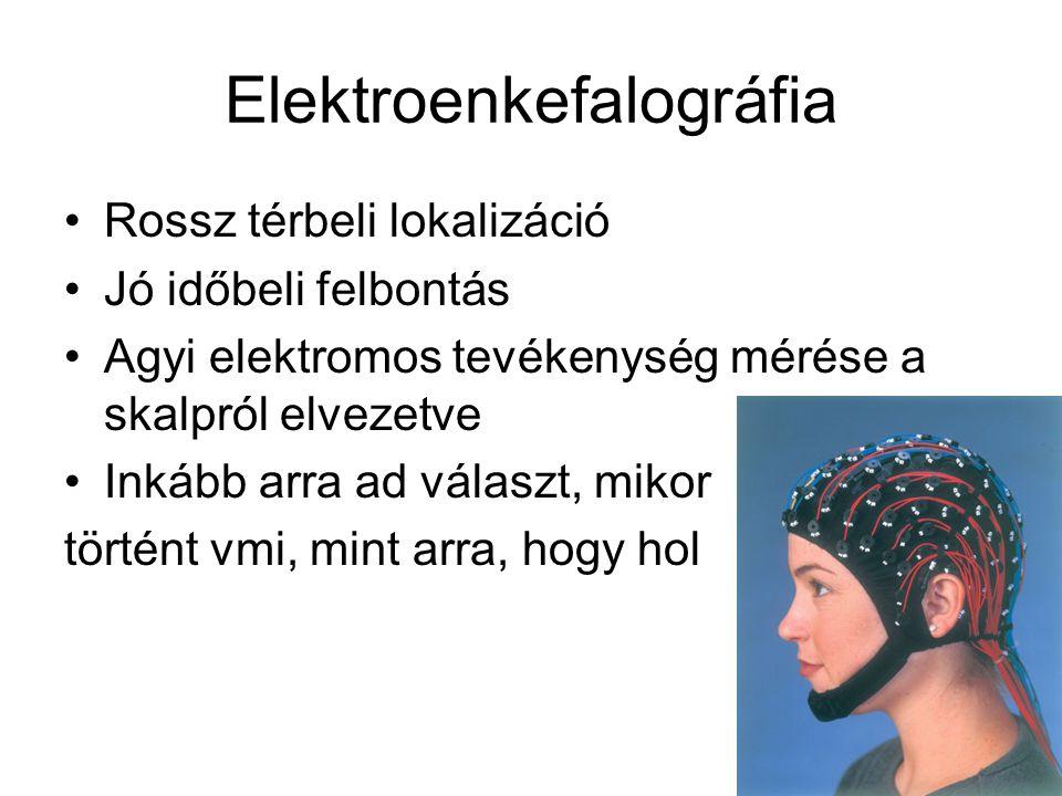 """EEG Átlagolással javítható a jel/zaj arány, kimutathatók állandó válaszok ingerekre. """"Event-related Potentials"""" /eseményfüggő potenciálok/"""