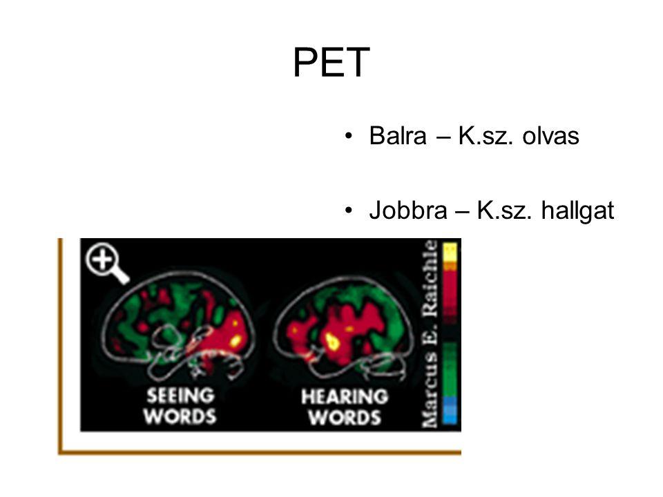 PET Positron Emission Tomography Rádióaktív molekulákat juttatnak a vérbe, a bomlás során keletkező pozitronokat mérik. Ahol nagyobb az aktivitás, ott