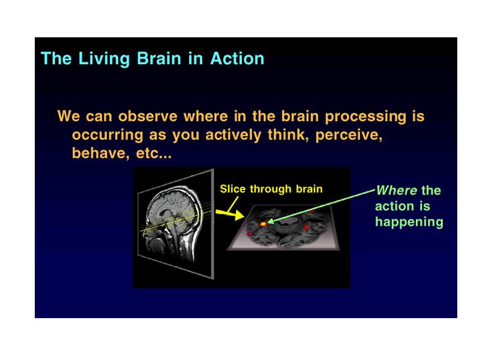 Functional MRI Lehetővé teszi egy feladat végrehajtása során aktiválódó területek feltérképezését baseline cognitive task