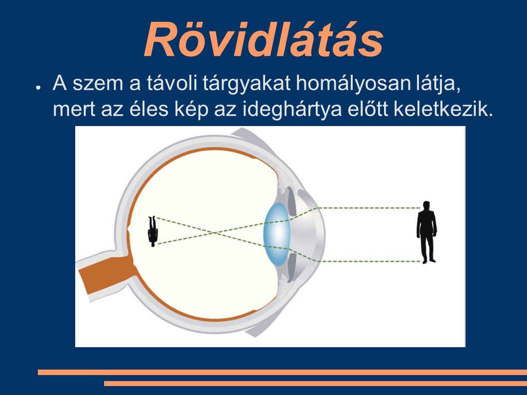 Rövidlátás ● A szem a távoli tárgyakat homályosan látja, mert az éles kép az ideghártya előtt keletkezik.